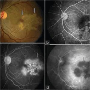 Retina Specialist in Mumbai