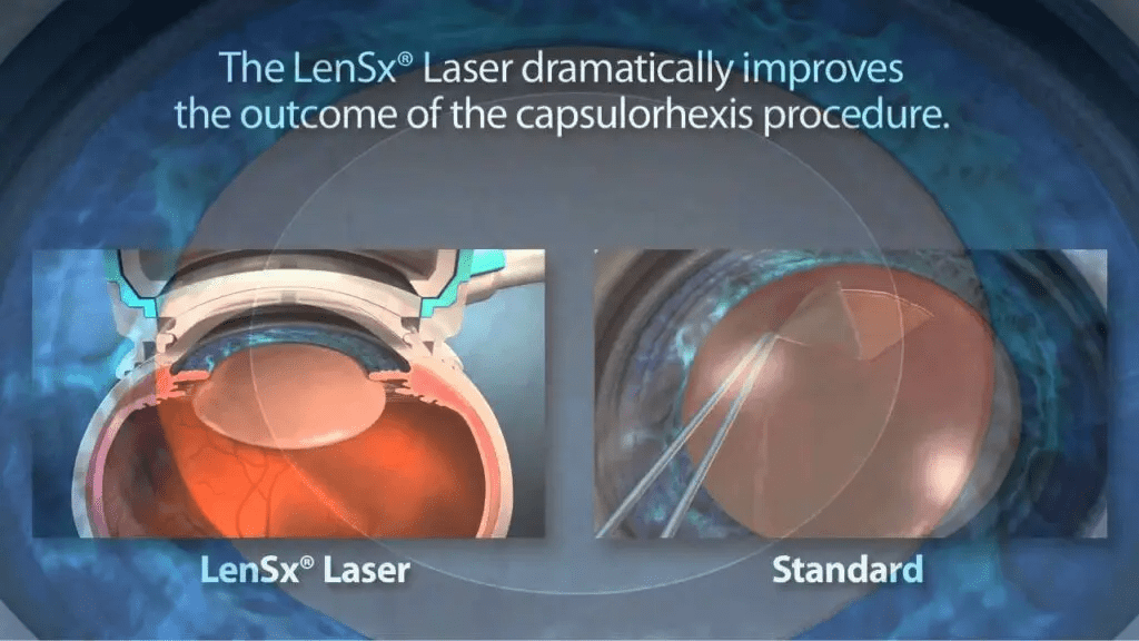 LenSX Laser Cataract Treatment in Mumbai