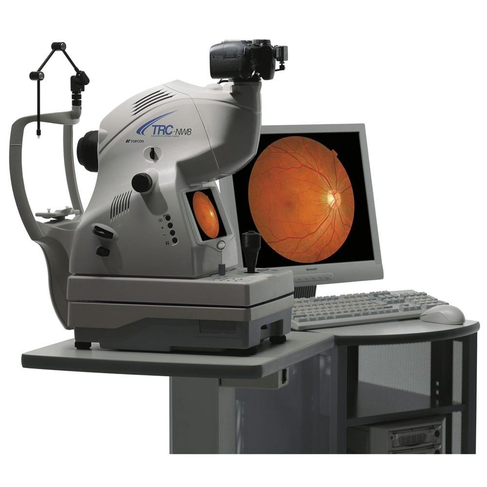 topcon fundus camera