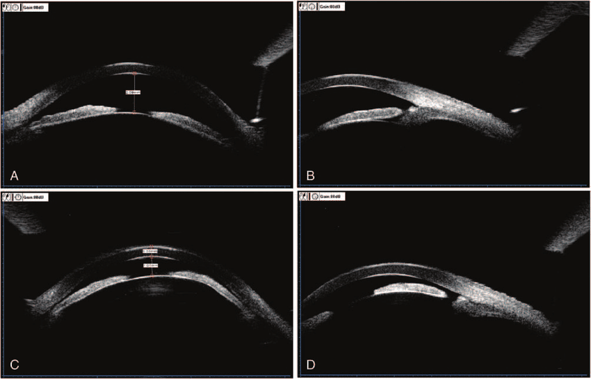 Ultrasound Biomicroscopy